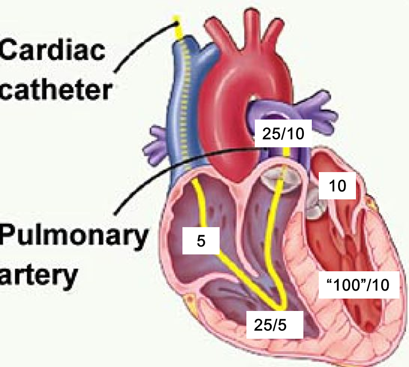 Hypertrophic Cardiomyopathy + Review of Intracardiac Pressures ...
