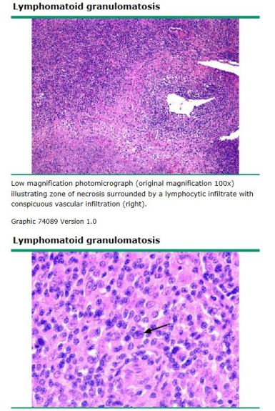 lymphom gran