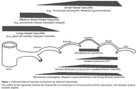vasculitis outline.jpg