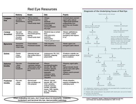 eye-complaints-2
