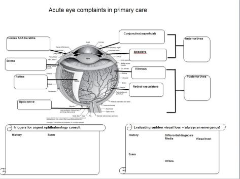 eye complaints handout.JPG