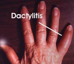 dactyl 1