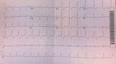 Post cardioversion