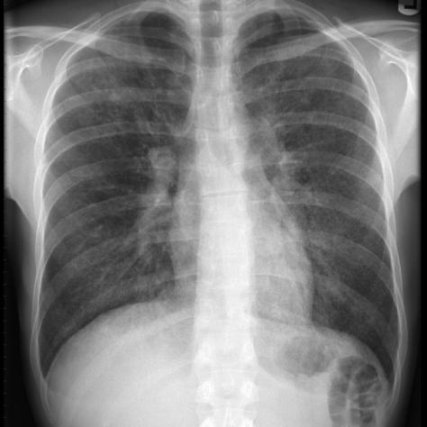 pneumocystis-pneumonia-1.jpg