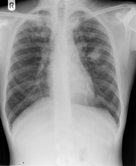pulmonary-tuberculosis-14