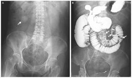 Gallstone Ileus2